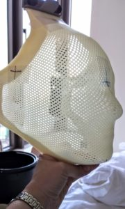 Radiosurgery mask - side