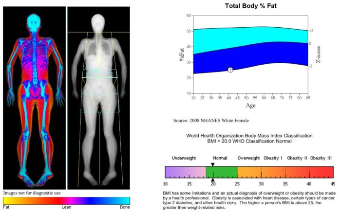 DXA Image scan of my body fat 10 months into my vegan keto anti-cancer diet.